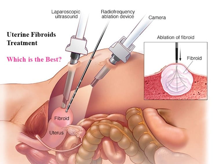 Best fibroid treatment in Hyderabad